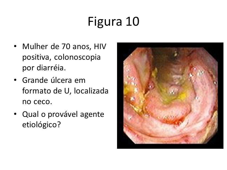 Figura 10 Mulher de 70 anos, HIV positiva, colonoscopia por diarréia.