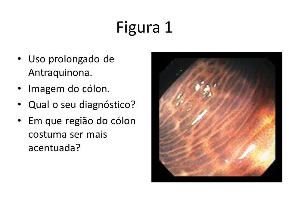 Figura 1 Uso prolongado de Antraquinona. Imagem do cólon.