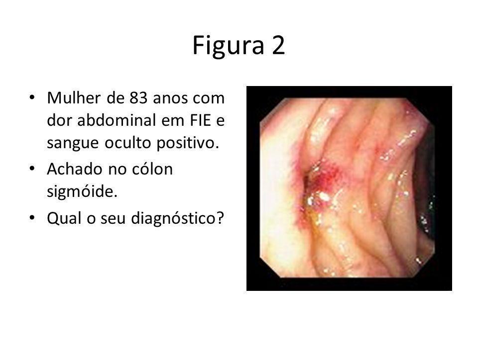 Figura 2 Mulher de 83 anos com dor abdominal em FIE e sangue oculto positivo. Achado no cólon sigmóide.