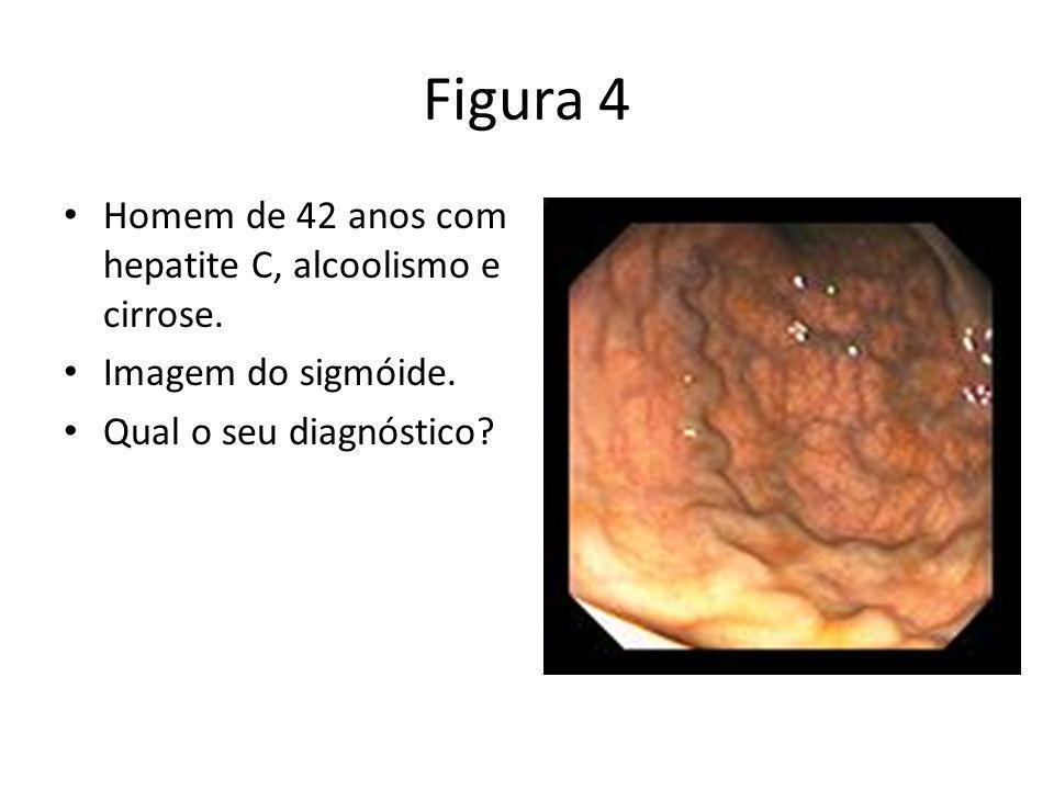 Figura 4 Homem de 42 anos com hepatite C, alcoolismo e cirrose.