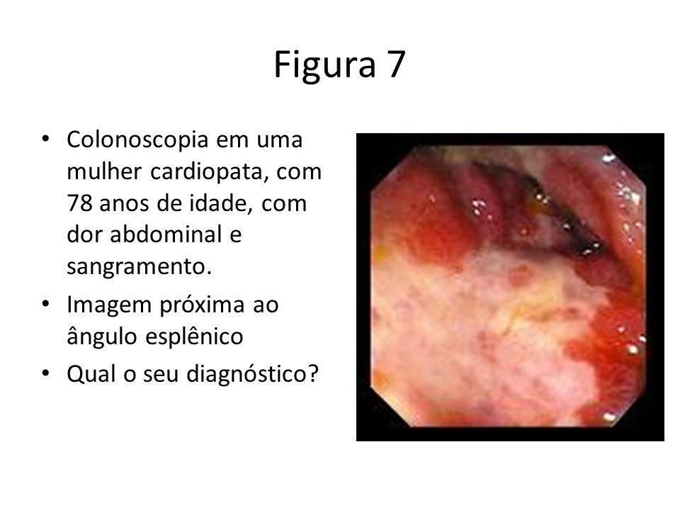 Figura 7 Colonoscopia em uma mulher cardiopata, com 78 anos de idade, com dor abdominal e sangramento.