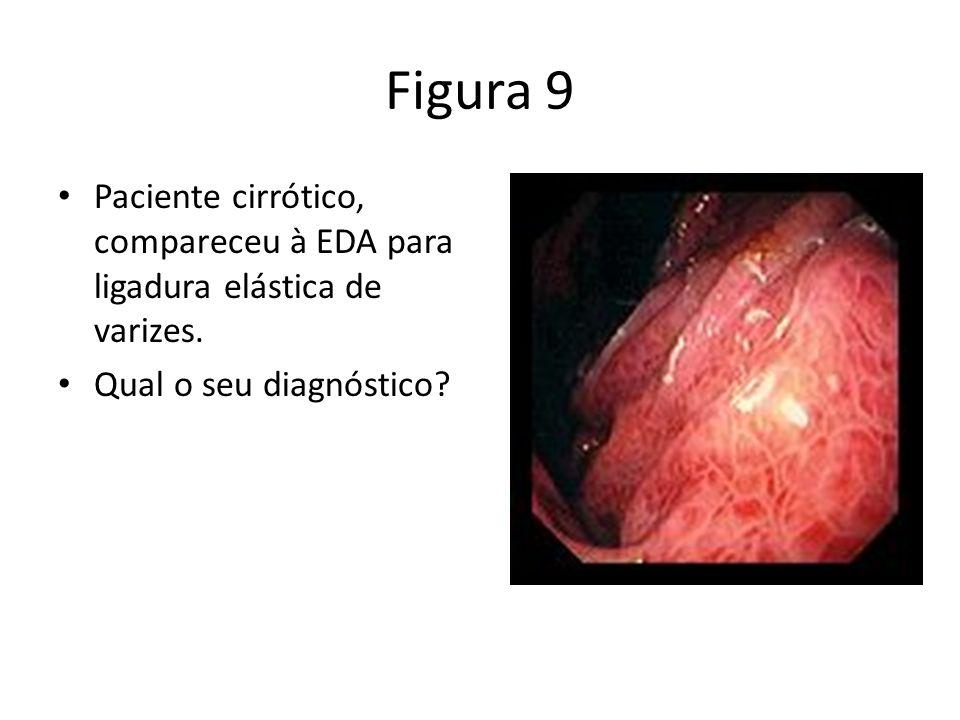 Figura 9 Paciente cirrótico, compareceu à EDA para ligadura elástica de varizes.