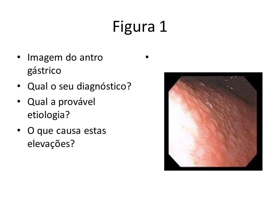 Figura 1 Imagem do antro gástrico Qual o seu diagnóstico