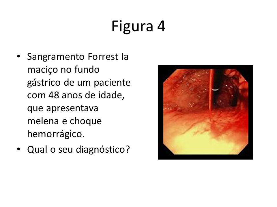 Figura 4 Sangramento Forrest Ia maciço no fundo gástrico de um paciente com 48 anos de idade, que apresentava melena e choque hemorrágico.