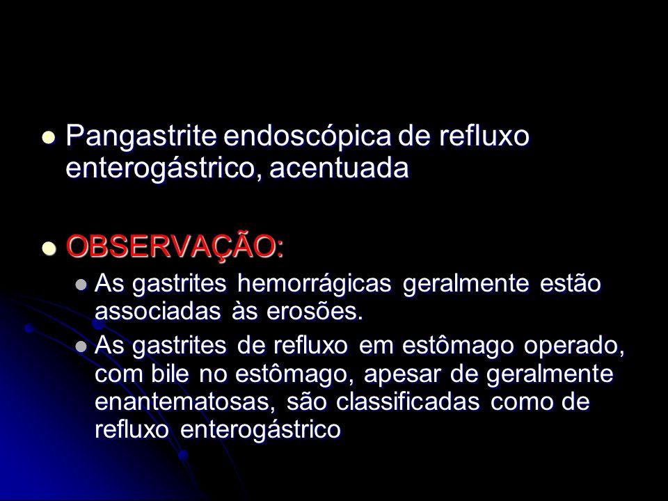 Pangastrite endoscópica de refluxo enterogástrico, acentuada