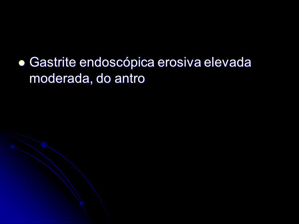 Gastrite endoscópica erosiva elevada moderada, do antro
