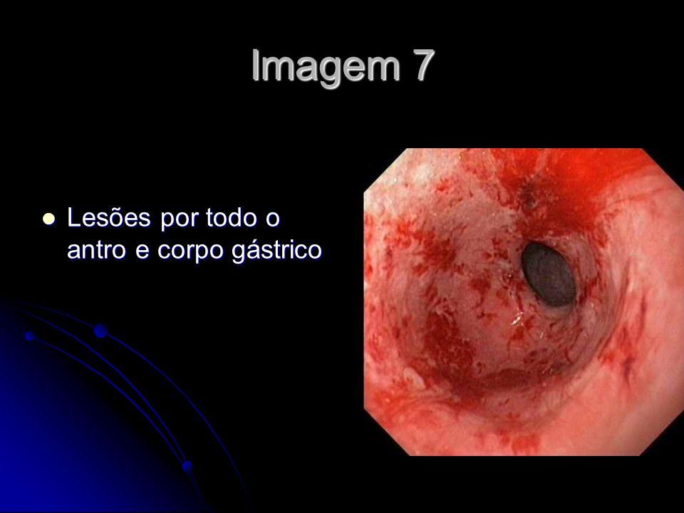 Imagem 7 Lesões por todo o antro e corpo gástrico