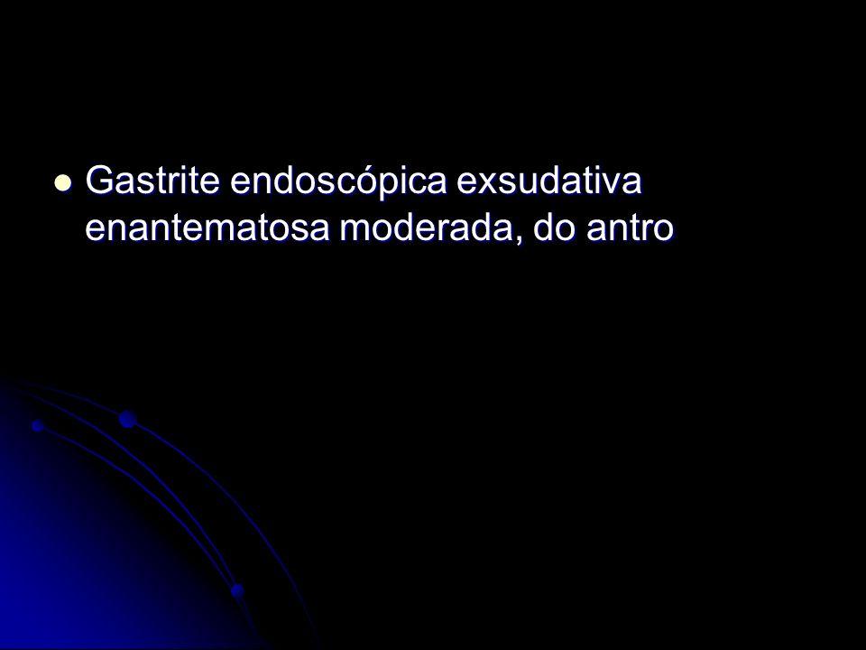 Gastrite endoscópica exsudativa enantematosa moderada, do antro