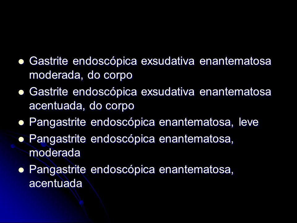 Gastrite endoscópica exsudativa enantematosa moderada, do corpo
