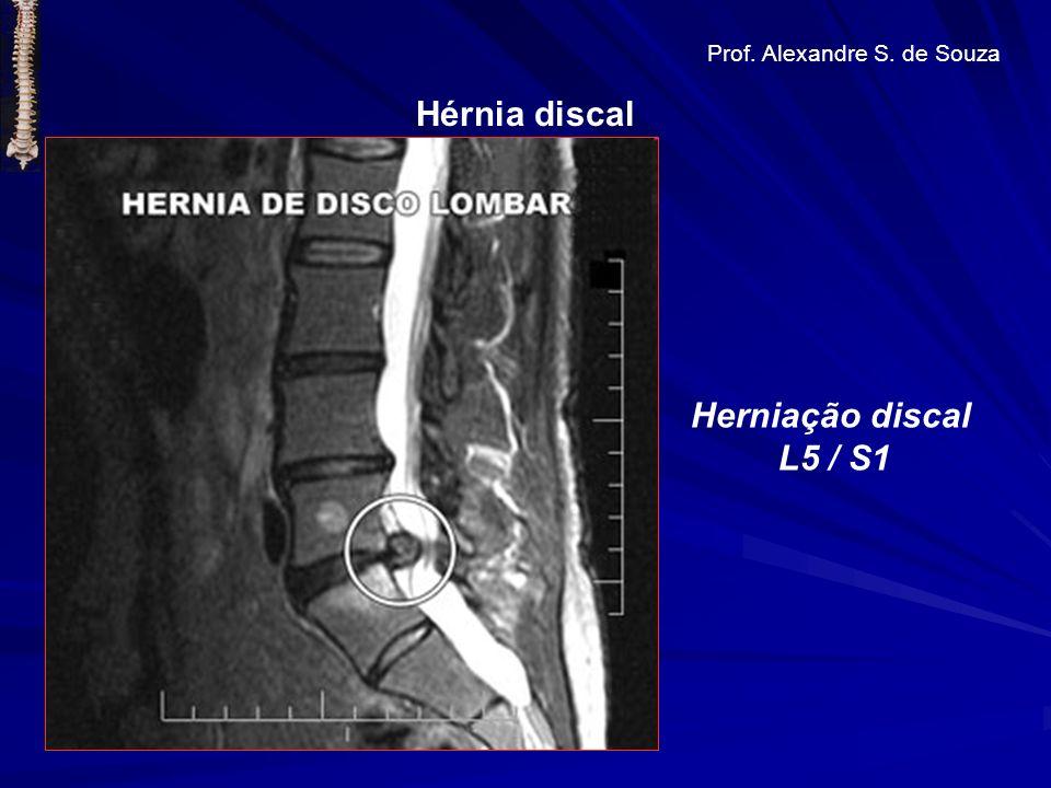 Hérnia discal Herniação discal L5 / S1