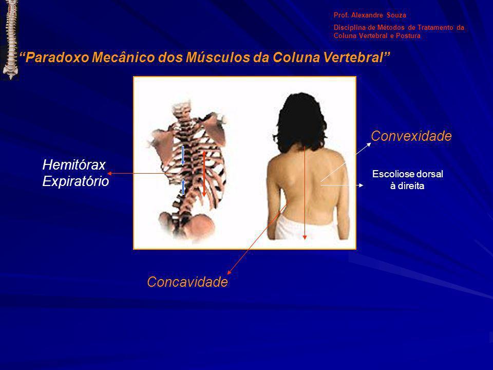 Paradoxo Mecânico dos Músculos da Coluna Vertebral