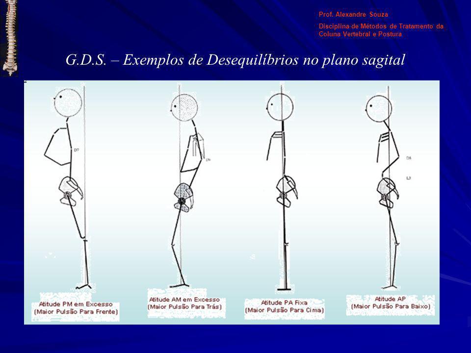 G.D.S. – Exemplos de Desequilíbrios no plano sagital