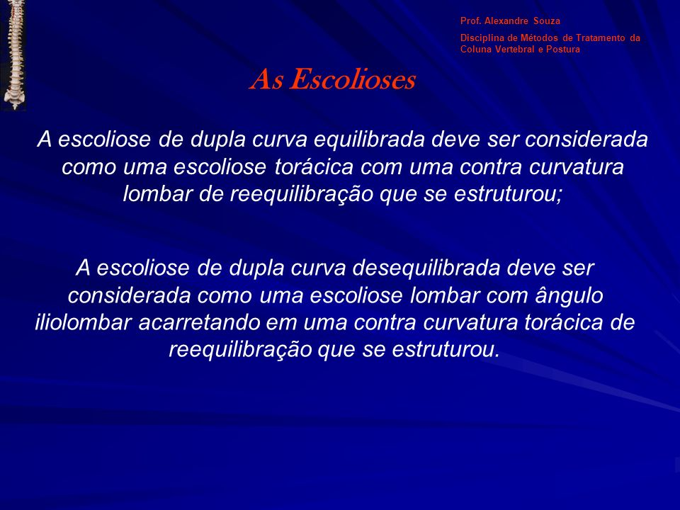 Prof. Alexandre Souza Disciplina de Métodos de Tratamento da Coluna Vertebral e Postura. As Escolioses.