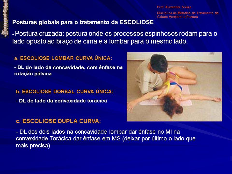 Posturas globais para o tratamento da ESCOLIOSE