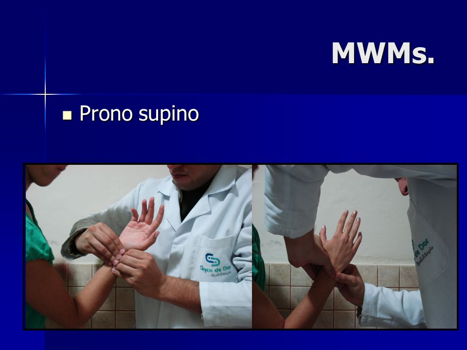 MWMs. Prono supino