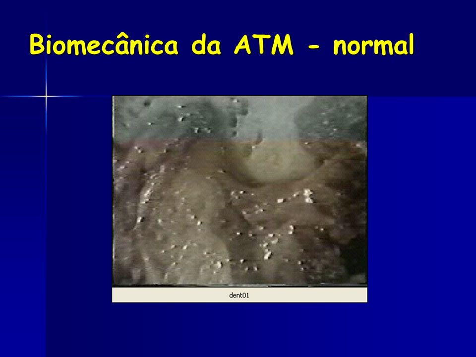 Biomecânica da ATM - normal