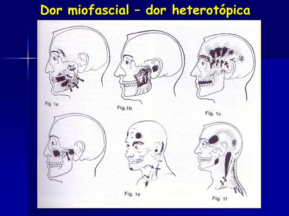 Dor miofascial – dor heterotópica