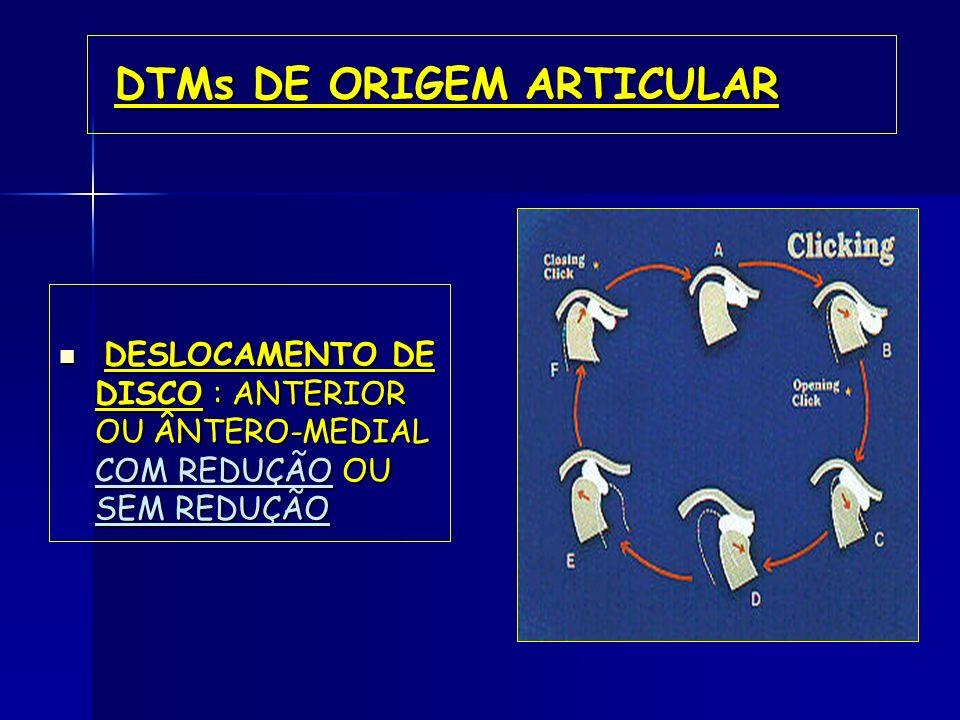 DTMs DE ORIGEM ARTICULAR