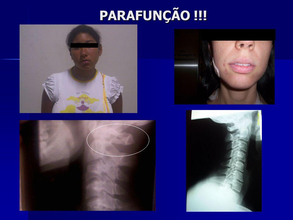 PARAFUNÇÃO !!!
