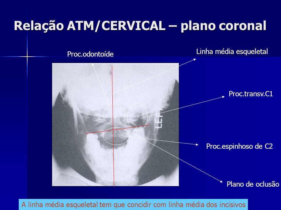 Relação ATM/CERVICAL – plano coronal