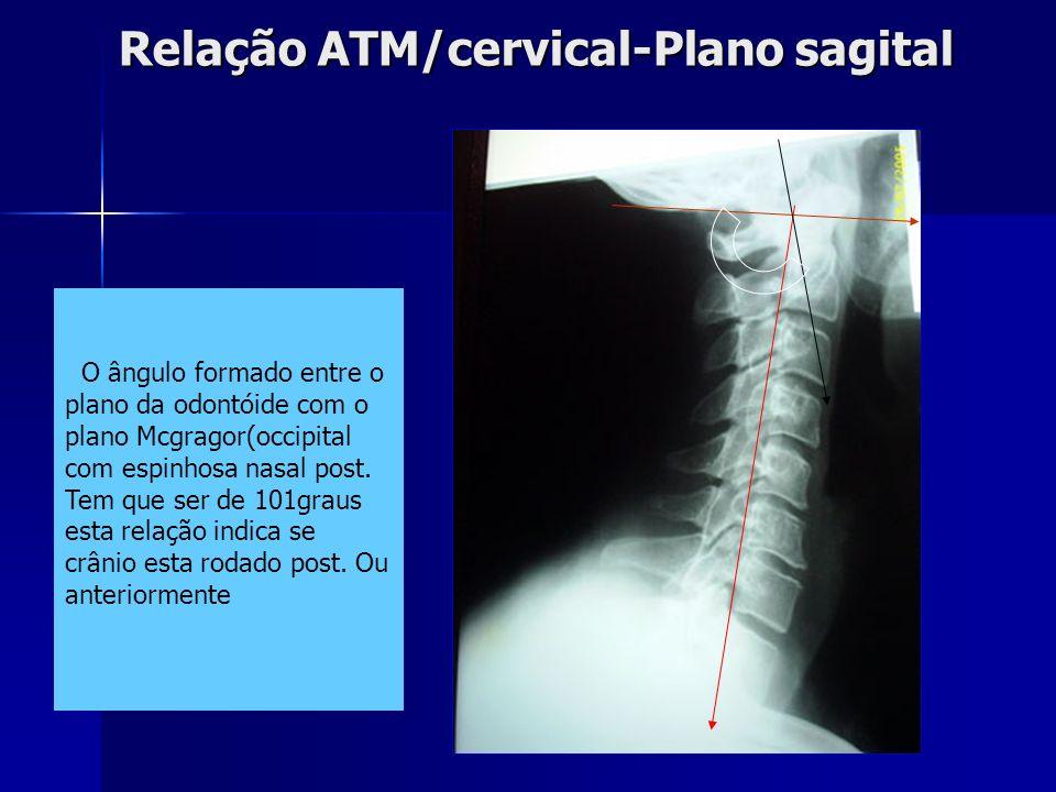 Relação ATM/cervical-Plano sagital
