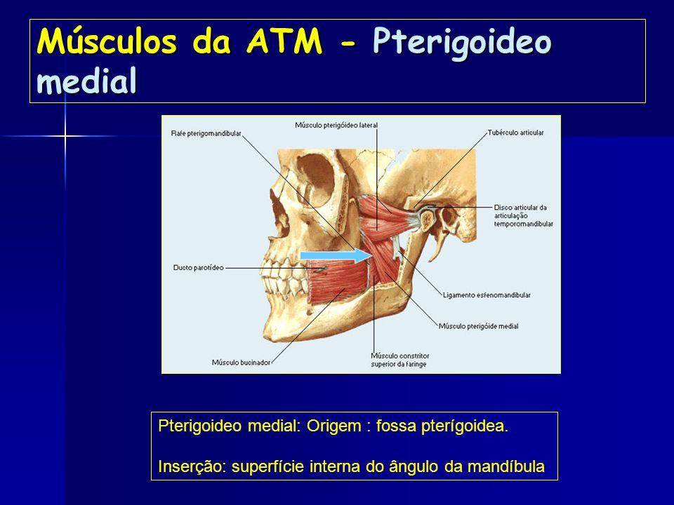Músculos da ATM - Pterigoideo medial
