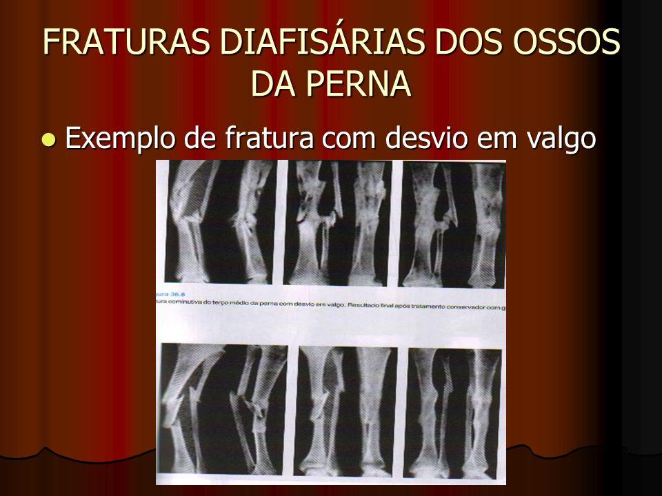 FRATURAS DIAFISÁRIAS DOS OSSOS DA PERNA