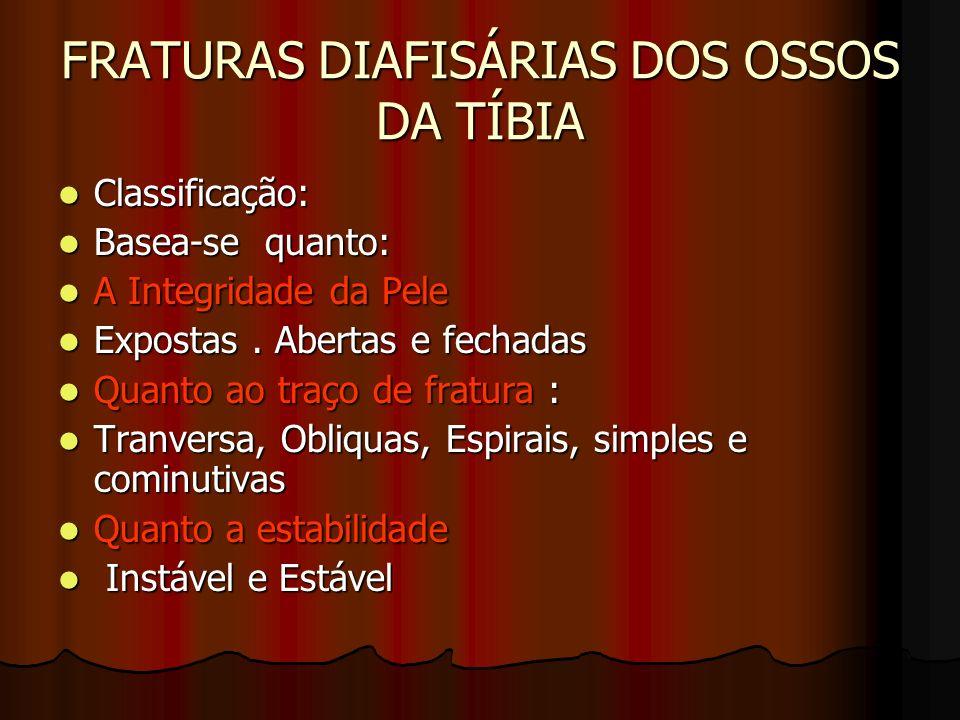 FRATURAS DIAFISÁRIAS DOS OSSOS DA TÍBIA