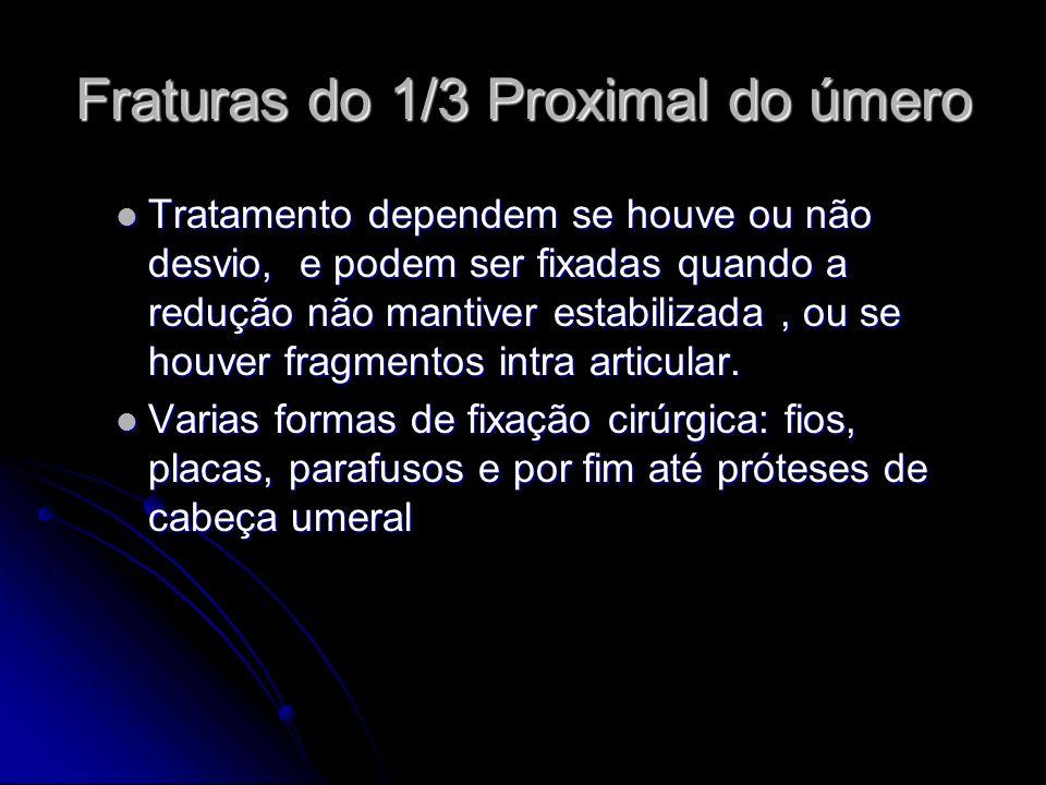 Fraturas do 1/3 Proximal do úmero