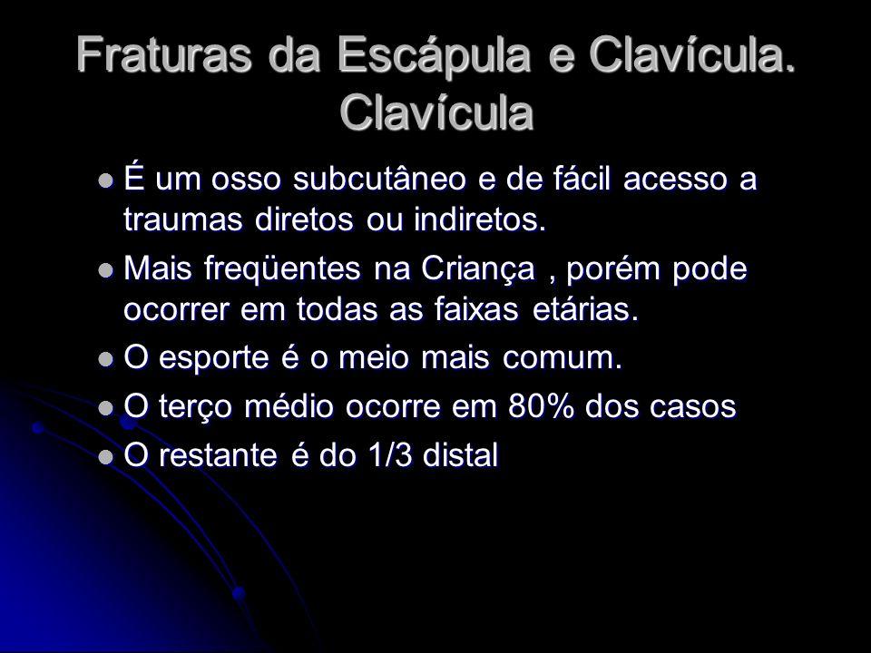 Fraturas da Escápula e Clavícula. Clavícula