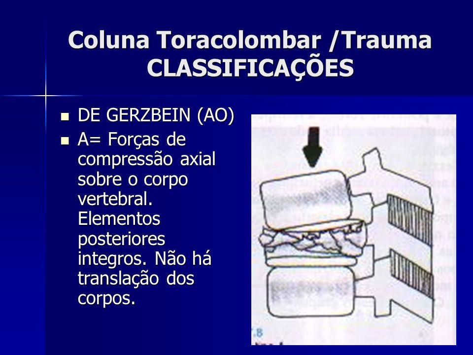 Coluna Toracolombar /Trauma CLASSIFICAÇÕES