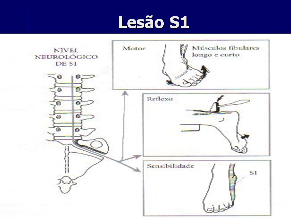 Lesão S1