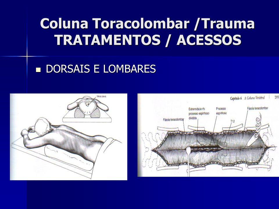 Coluna Toracolombar /Trauma TRATAMENTOS / ACESSOS