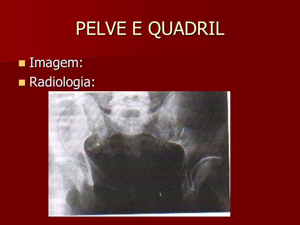 PELVE E QUADRIL Imagem: Radiologia: