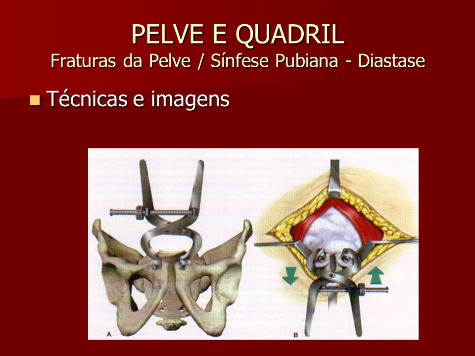 PELVE E QUADRIL Fraturas da Pelve / Sínfese Pubiana - Diastase
