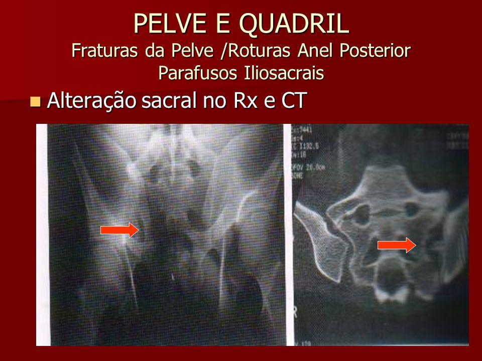 PELVE E QUADRIL Fraturas da Pelve /Roturas Anel Posterior Parafusos Iliosacrais