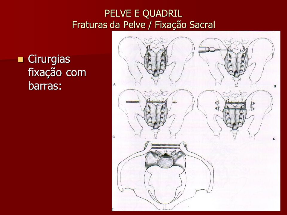 PELVE E QUADRIL Fraturas da Pelve / Fixação Sacral