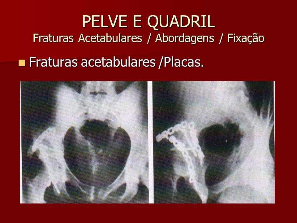 PELVE E QUADRIL Fraturas Acetabulares / Abordagens / Fixação