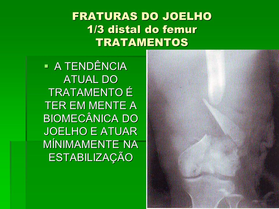 FRATURAS DO JOELHO 1/3 distal do femur TRATAMENTOS