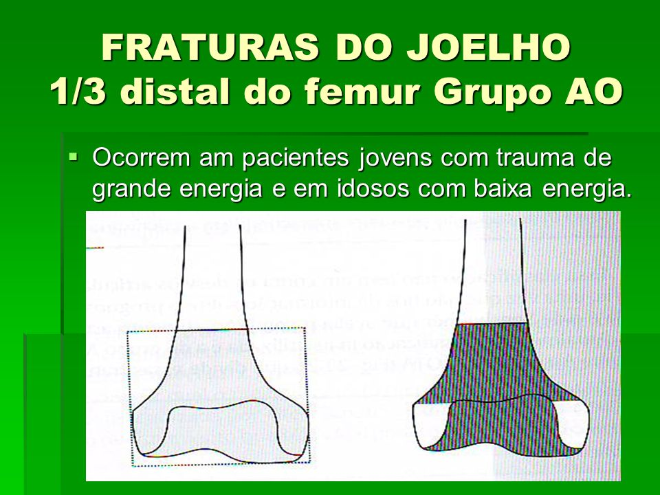 FRATURAS DO JOELHO 1/3 distal do femur Grupo AO
