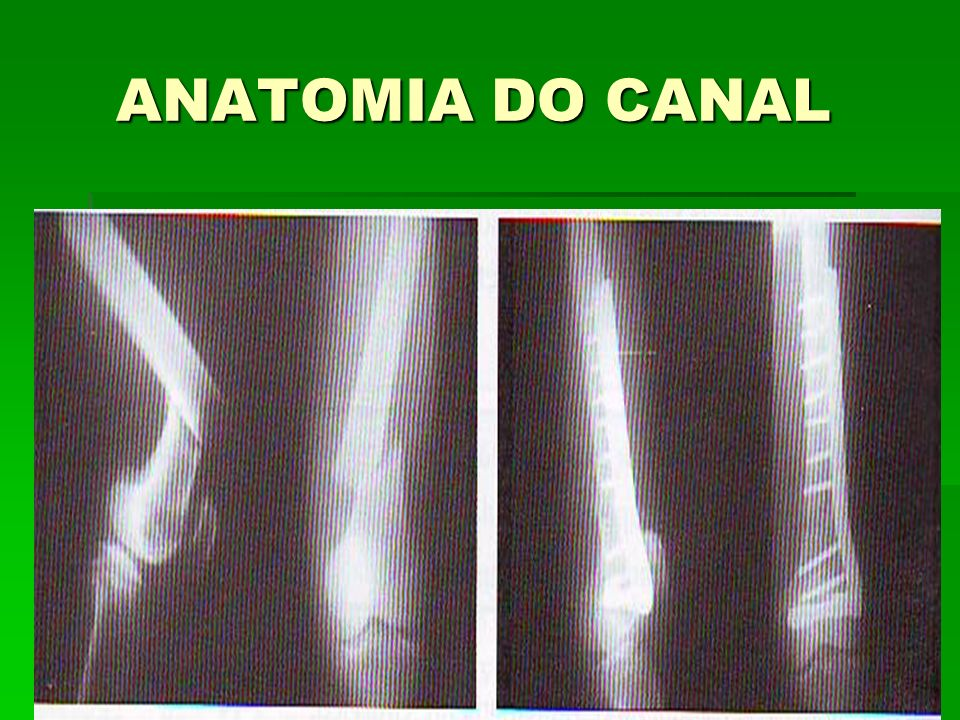 ANATOMIA DO CANAL