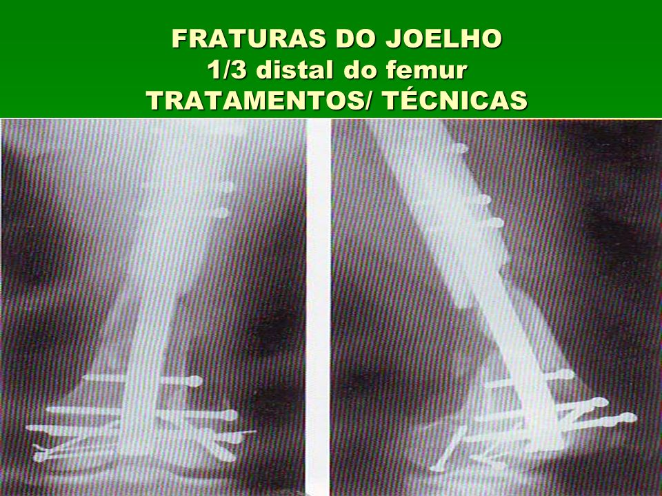 FRATURAS DO JOELHO 1/3 distal do femur TRATAMENTOS/ TÉCNICAS