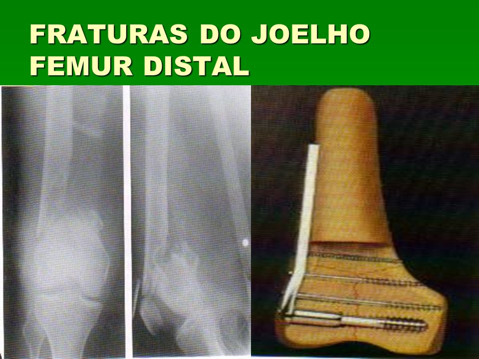 FRATURAS DO JOELHO FEMUR DISTAL