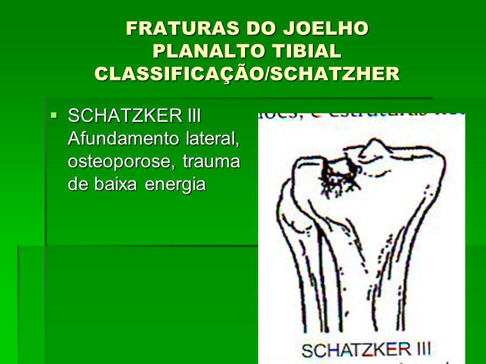 FRATURAS DO JOELHO PLANALTO TIBIAL CLASSIFICAÇÃO/SCHATZHER