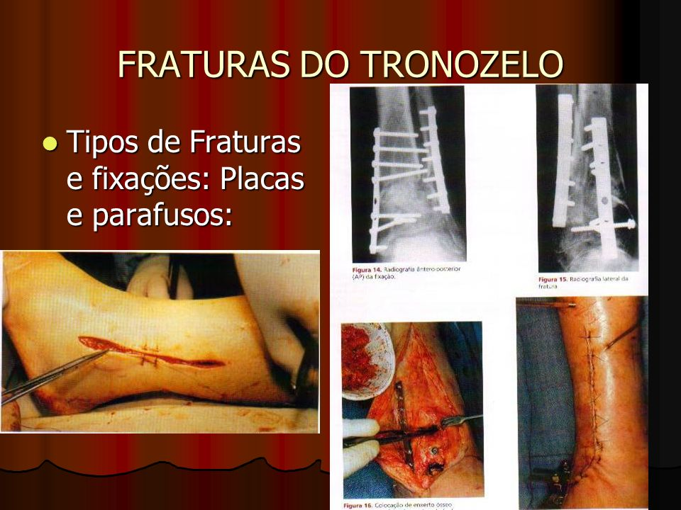 FRATURAS DO TRONOZELO Tipos de Fraturas e fixações: Placas e parafusos: