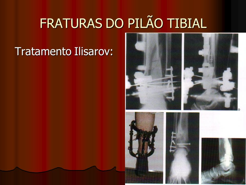 FRATURAS DO PILÃO TIBIAL