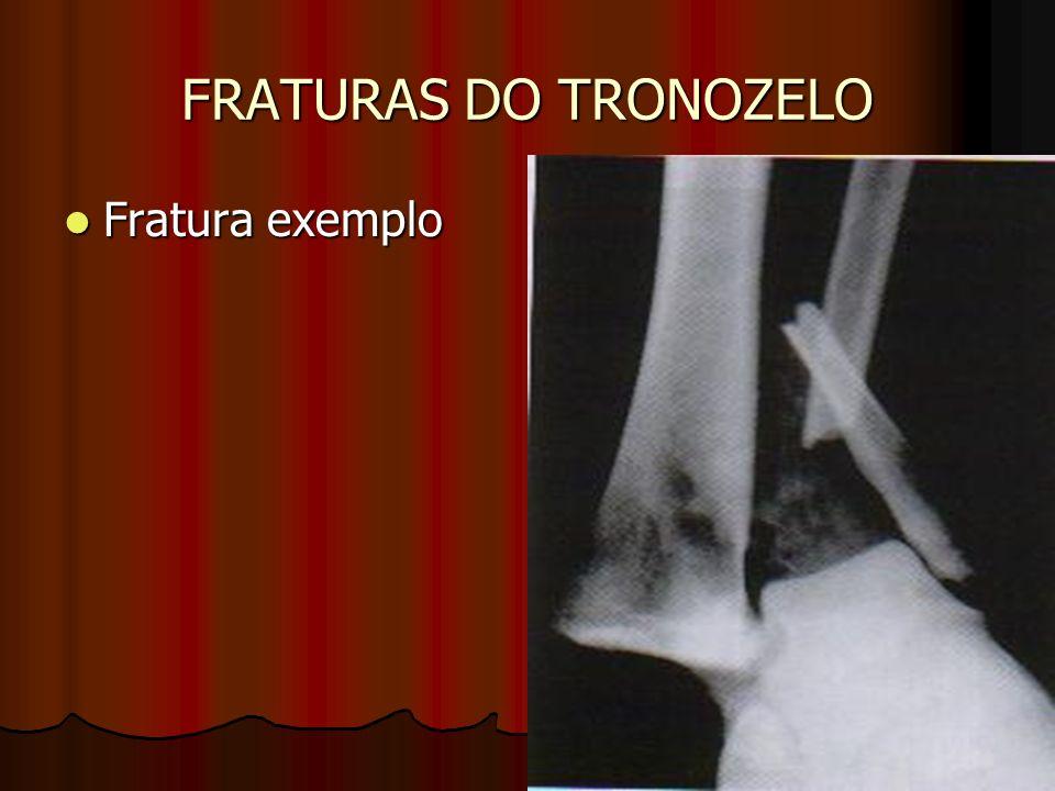 FRATURAS DO TRONOZELO Fratura exemplo