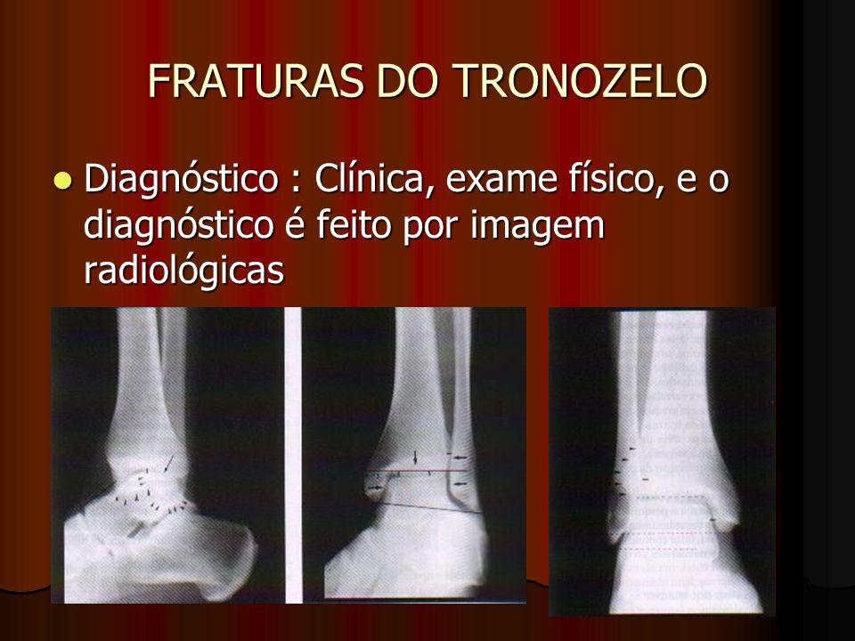 FRATURAS DO TRONOZELODiagnóstico : Clínica, exame físico, e o diagnóstico é feito por imagem radiológicas.