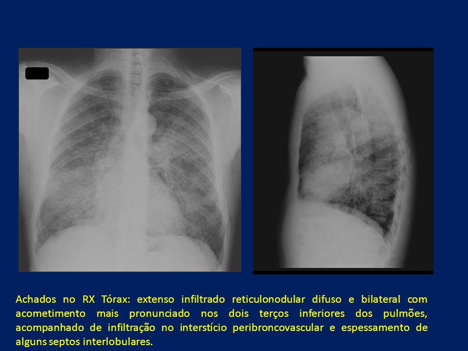 Achados no RX Tórax: extenso infiltrado reticulonodular difuso e bilateral com acometimento mais pronunciado nos dois terços inferiores dos pulmões, acompanhado de infiltração no interstício peribroncovascular e espessamento de alguns septos interlobulares.