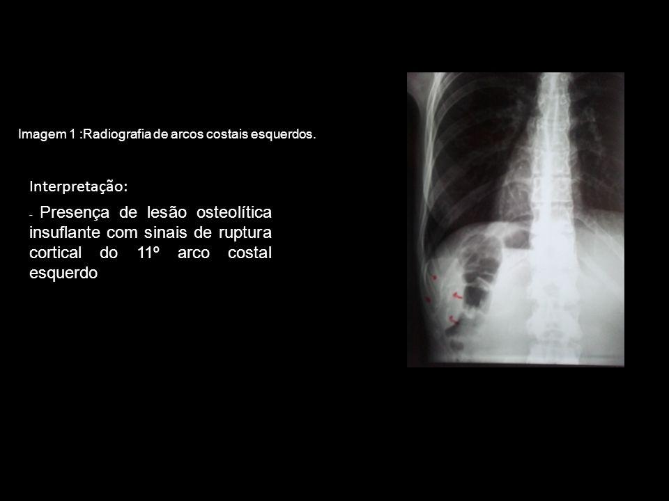Interpretação: Imagem 1 :Radiografia de arcos costais esquerdos.